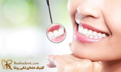 لمینت دندان در سال 1400