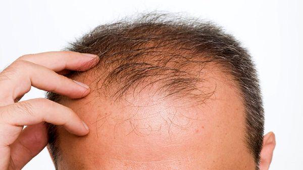 علت ریزش موی شدید چیست؟
