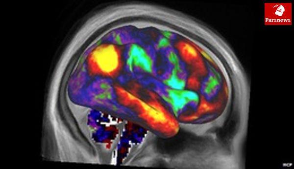 مغز، چگونه جهتگیری سیاسی را انتخاب میکند؟