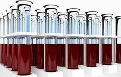 کشف دو گروه خونی جدید