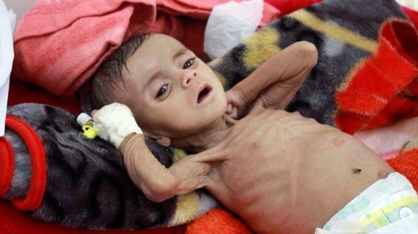 ۸ میلیون کودک یمنی محروم از آب سالم