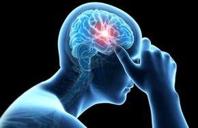 سکته مغزی در مردان چه علائمی دارد؟