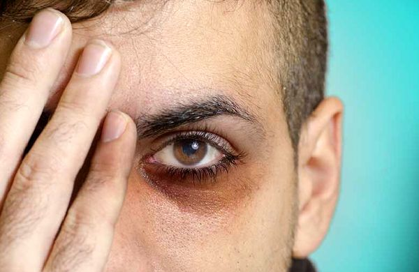 چرا زیر چشم ها تیره میشه؟