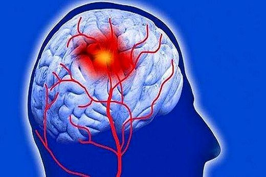سکته مغزی چه زمانی قابل درمان است؟