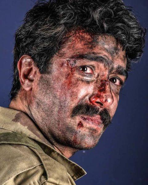 صورت زخمی و خونی حسین مهری + عکس
