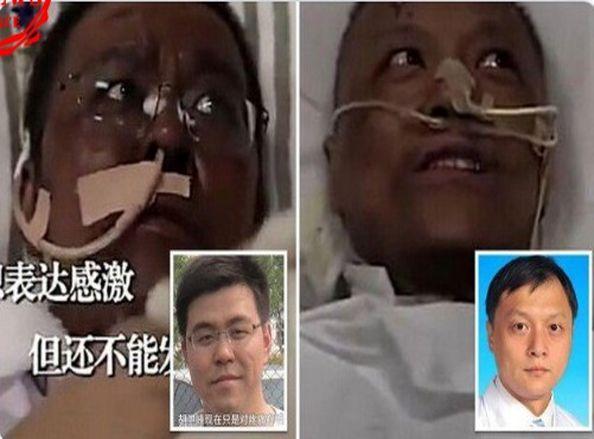 ماجرای سیاه شدن بیماران کرونایی