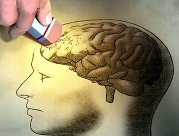 الکلیها بیشتر آلزایمر میگیرند