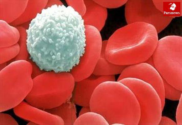 آغاز بی سر و صدای سرطان خون