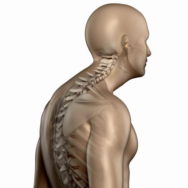 انواع کیفوز(قوز کمر): تشخیص و درمان انواع قوز پشت