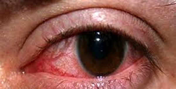 نابینایی در کمین بیماران مبتلا به تیروئید