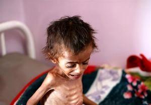 یمن در آستانه قحطی است