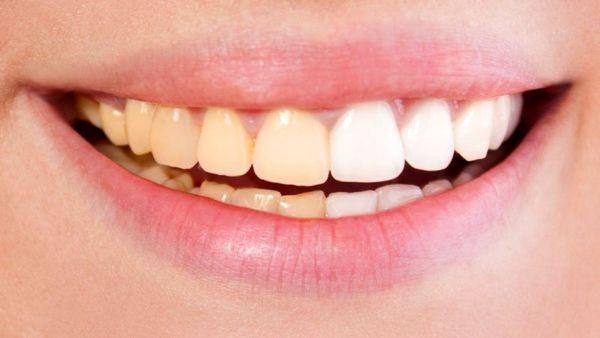 کارهایی که برای سلامت دهان و دندان باید انجام داد !