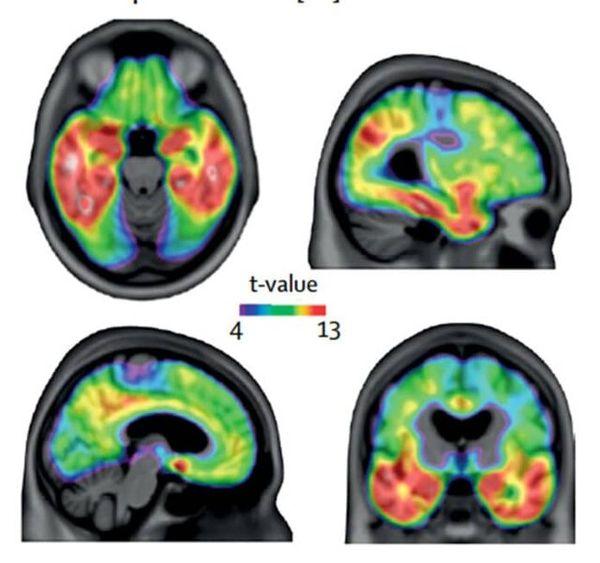 توسعه آزمایش خونی جدید برای تشخیص آلزایمر