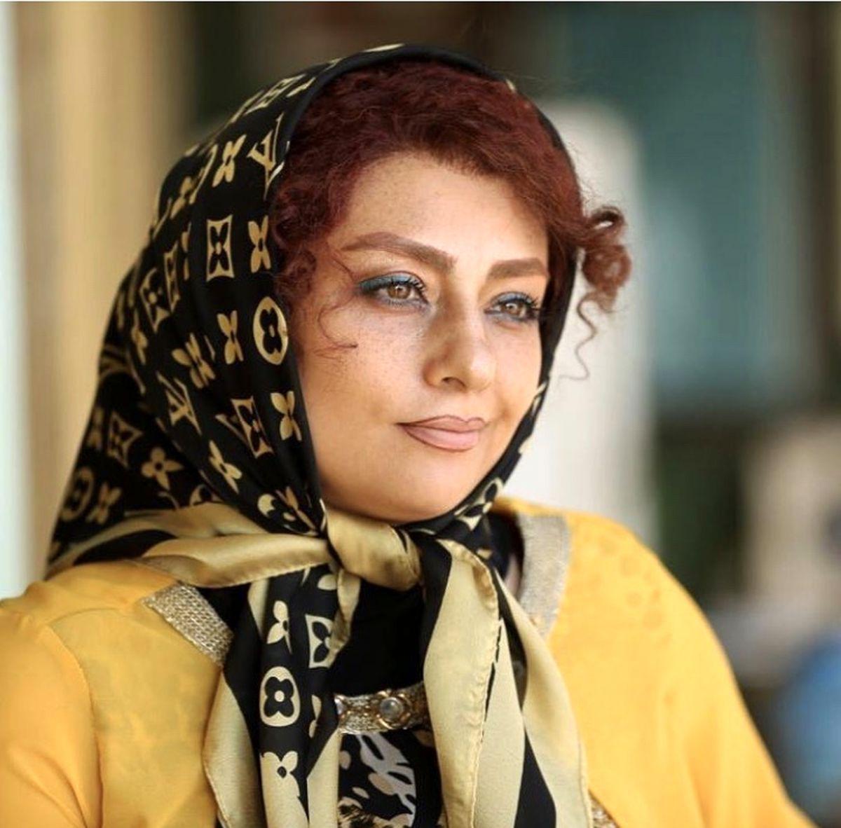 یکتا ناصر با چهره ای جنجالی + عکس
