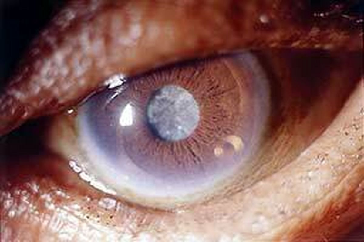 راه رفع چشم زخم + روایات متعدد