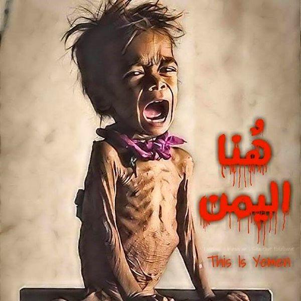 به زجر یمن پایان دهید