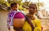 رشد عجیب تومور در کلیه کودک 3 ساله هندی +تصاویر