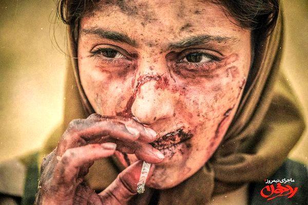 صورت زخمی هستی مهدوی + عکس