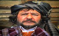صورت زخمی امیرحسین صدیق در یک فیلم