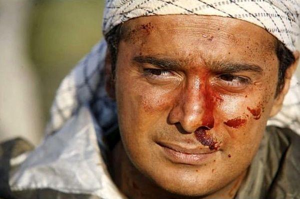صورت زخمی سپند امیرسلیمانی + عکس