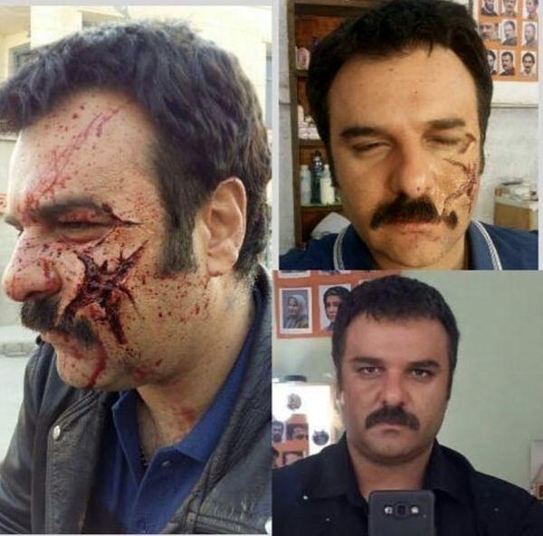 صورت ترکیده آقای بازیگر + عکس