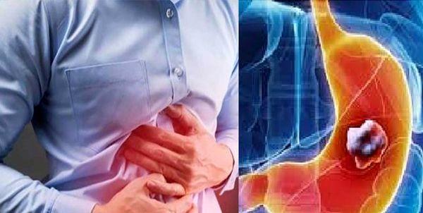 رژیم غذایی برای درمان رفلاکس