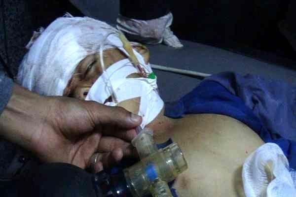 سازمان ملل: عربستان کودکان یمنی را می کُشد