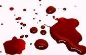 چه افرادی در معرض لخته شدن خون هستند