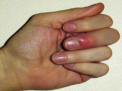 عقربک ناخن چیست؟ علائم و درمان عقربک ناخن