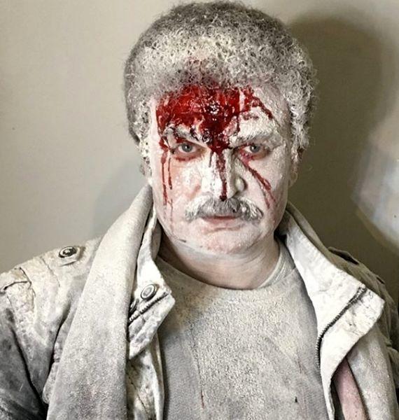 مهدی سلطانی با صورتی زخمی + عکس