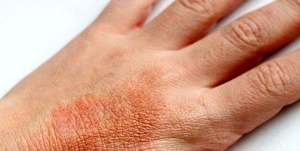توصیههایی برای پیشگیری از بروز «اگزما» در فصل پاییز