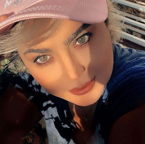 تغییر چهره سولماز آقمقامی + عکس